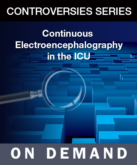 Continuous Electroencephalography in the ICU On Demand